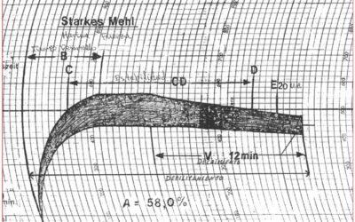Interpretación de los parámetros del Farinograma